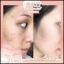 ไอโกะ กลูต้า คอลลาเจน Aiko Gluta Collagen thumbnail 12