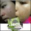 ใหม่ สบู่คลีนซิ่ง ดีท็อกซ์เอมิ Detox & Anti Acne By Ami Skincare thumbnail 6