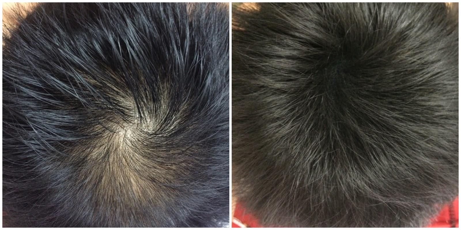 ใช้ samson hair fiber