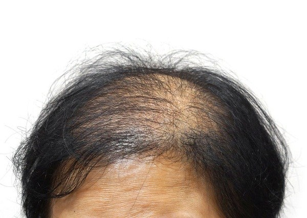 samson hair fiber ช่วยปกปิดผมบาง ทำให้ผมดูหนาขึ้น
